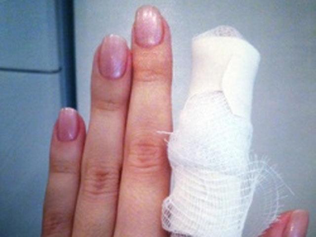В Абакане немолодая пьяная женщина откусила знакомой палец